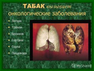 21 ноября — Всемирный День некурения. Профилактика онкологических заболеваний