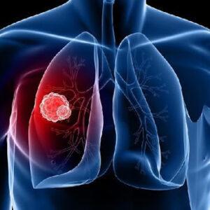 Чем опасен туберкулез?